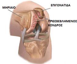 χονδροπαθεια-επιγονατιδας